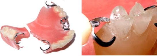 保険の入れ歯写真