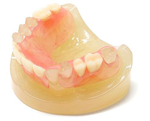 バネを使わない入れ歯、スマイルデンチャー