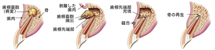 歯根端切除術の流れのイメージ