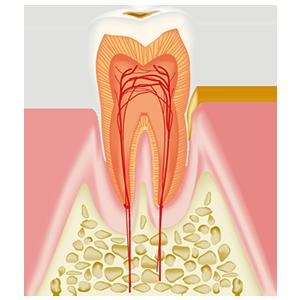 CO 初期のむし歯