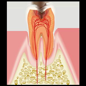 C3 神経(歯髄)に達したむし歯
