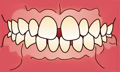 前歯の歯と歯の間に隙間があるイメージ