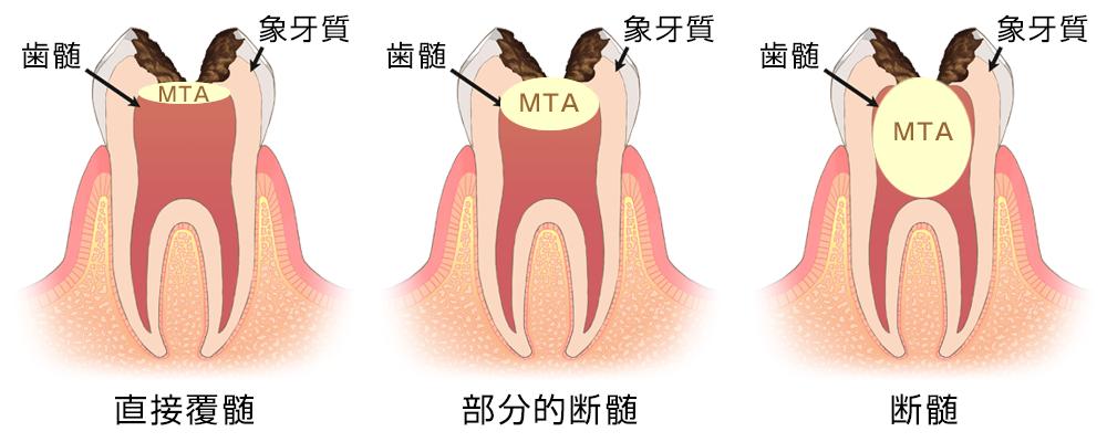 MTAセメントによる歯髄温存療法の治療イメージ