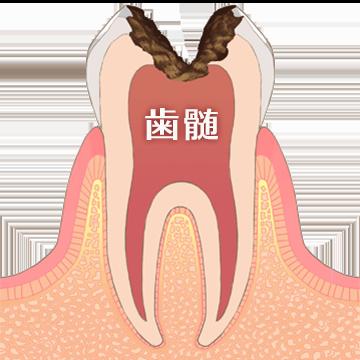 歯髄のイラスト