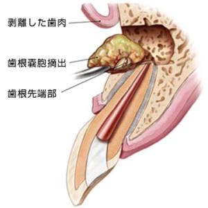 歯根端切除術のイラスト