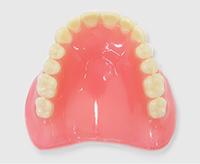 プラスチック義歯(保険義歯)