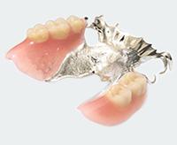 チタン床義歯(部分入れ歯)