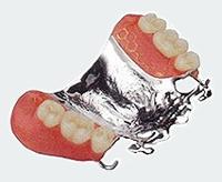 コバルトクロム床義歯(部分入れ歯)