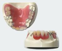 プラスチック義歯(部分入れ歯)